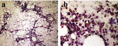 piperacillin/tazobactam induced myelosuppression | lee | journal, Skeleton
