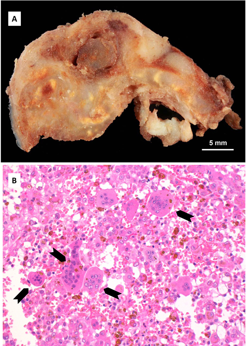 Tenosynovial Diffuse Type Giant Cell Tumor Of The