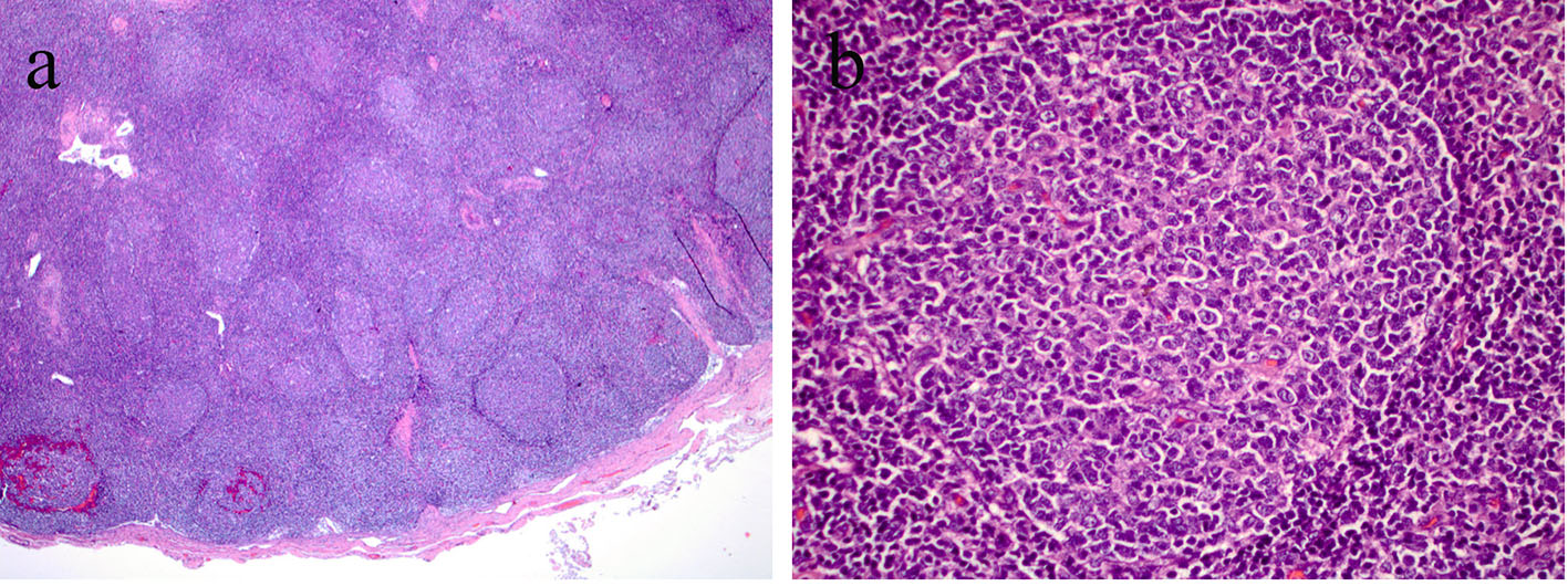 Generalized Lymphadenopathy As Presenting Feature Of